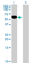 Western blot - LOC200383 antibody (ab73039)