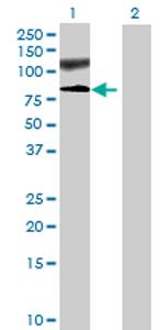 Western blot - TTC30B antibody (ab73046)
