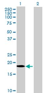 Western blot - ARP10 antibody (ab73055)
