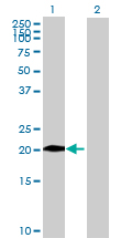 Western blot - CHST13 antibody (ab73062)