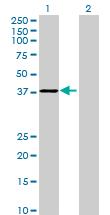 Western blot - RG9MTD3 antibody (ab73084)