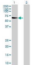 Western blot - CLEC14A  antibody (ab73087)