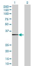 Western blot - TBC1D21 antibody (ab73089)