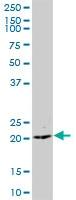 Western blot - Anti-CCDC126 antibody (ab73114)