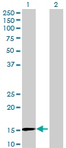 Western blot - ZNF697 antibody (ab73115)