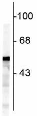Western blot - Vimentin antibody (ab73159)