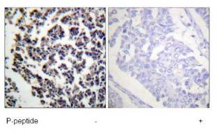 Immunohistochemistry (Formalin/PFA-fixed paraffin-embedded sections) - BLNK (phospho Y96) antibody (ab73204)