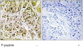 Immunohistochemistry (Formalin/PFA-fixed paraffin-embedded sections) - Smad1 (phospho S187) antibody (ab73211)