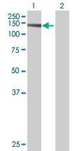 Western blot - SORBS2 antibody (ab73444)