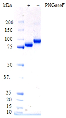 SDS-PAGE - Factor B protein (His tag) (ab73657)