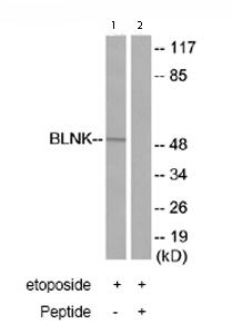 Western blot - BLNK antibody (ab73706)