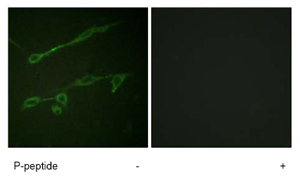 Immunocytochemistry/ Immunofluorescence - VAV2 (phospho Y142) antibody (ab73707)