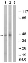 Western blot - PKA 2 beta (regulatory subunit) antibody (ab73940)