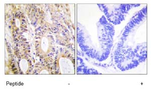 Immunohistochemistry (Formalin/PFA-fixed paraffin-embedded sections) - Smad3 antibody (ab73942)