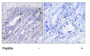 Immunohistochemistry (Formalin/PFA-fixed paraffin-embedded sections) - NUR77 antibody (ab73982)