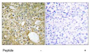 Immunohistochemistry (Formalin/PFA-fixed paraffin-embedded sections) - ACVRL1 antibody (ab74039)
