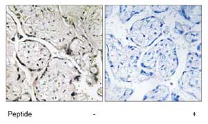 Immunohistochemistry (Formalin/PFA-fixed paraffin-embedded sections) - SAR1B antibody (ab74046)