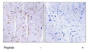 Immunohistochemistry (Formalin/PFA-fixed paraffin-embedded sections) - AKAP13 antibody (ab74048)