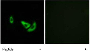 Immunocytochemistry/ Immunofluorescence - TRP2 antibody (ab74073)