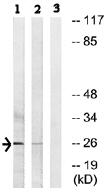 Western blot - LDLRAD1 antibody (ab74074)