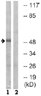 Western blot - LRP11 antibody (ab74099)