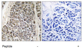 Immunohistochemistry (Formalin/PFA-fixed paraffin-embedded sections) - MRPS21 antibody (ab74101)