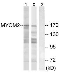 Western blot - MYOM2 antibody (ab74110)