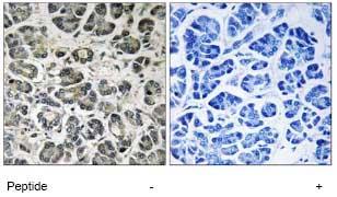 Immunohistochemistry (Formalin/PFA-fixed paraffin-embedded sections) - NDUFA8 antibody (ab74126)