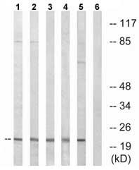 Western blot - NDUFA8 antibody (ab74126)