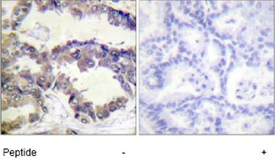 Immunohistochemistry (Formalin/PFA-fixed paraffin-embedded sections) - Anti-Caspase-2 antibody (ab74127)