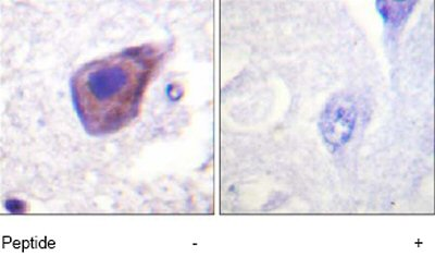 Immunohistochemistry (Formalin/PFA-fixed paraffin-embedded sections) - G Protein alpha x+z antibody (ab74128)