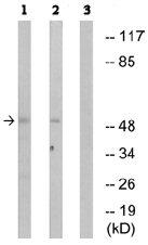 Western blot - hnRNP K antibody (ab74129)