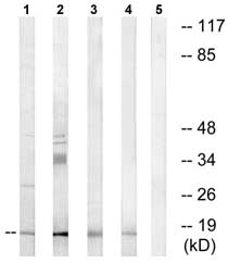 Western blot - NDUFA4L2 antibody (ab74138)