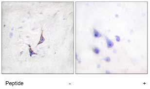 Immunohistochemistry (Formalin/PFA-fixed paraffin-embedded sections) - Syndecan 4 antibody (ab74139)