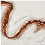 Immunohistochemistry (Formalin/PFA-fixed paraffin-embedded sections) - Involucrin antibody [SY5], prediluted (ab74181)