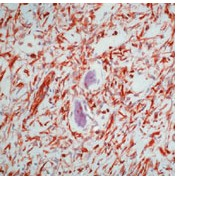 Immunohistochemistry (Formalin/PFA-fixed paraffin-embedded sections) - Vimentin antibody [V9], prediluted (ab74182)