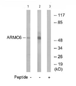 Western blot - ARMC6 antibody (ab74234)