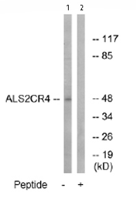 Western blot - ALS2CR4 antibody (ab74236)