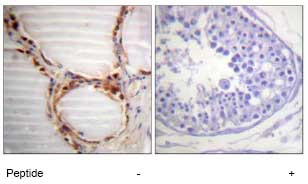 Immunohistochemistry (Formalin/PFA-fixed paraffin-embedded sections) - MCM4 antibody (ab74237)