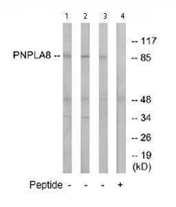 Western blot - PNPLA8 antibody (ab74242)