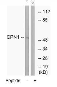 Western blot - CPN1 antibody (ab74243)