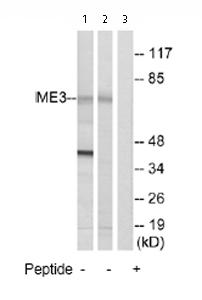 Western blot - ME3 antibody (ab74258)