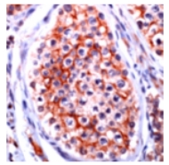 Immunohistochemistry (Formalin/PFA-fixed paraffin-embedded sections) - Oligodendrocyte Specific Protein OSP antibody (ab74269)