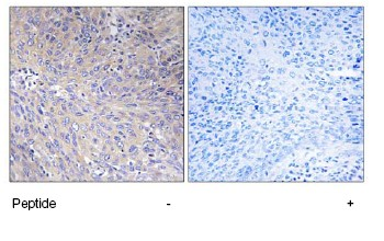 Immunohistochemistry (Formalin/PFA-fixed paraffin-embedded sections) - Mitochondrial ribosomal protein L11 antibody (ab74285)