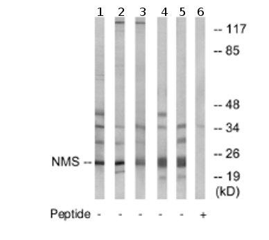 Western blot - NMS antibody (ab74298)