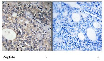 Immunohistochemistry (Formalin/PFA-fixed paraffin-embedded sections) - RPL17 antibody (ab74300)