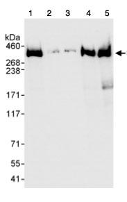Western blot - Alpha Fodrin antibody (ab74312)