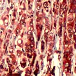 Immunohistochemistry (Formalin/PFA-fixed paraffin-embedded sections) - RPS6 antibody (ab74338)