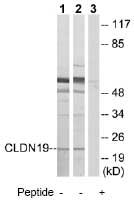 Western blot - CLDN19 antibody (ab74374)