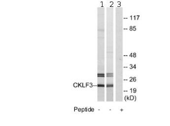 Western blot - CMTM3 antibody (ab74375)
